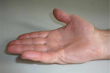 Knubbel finger Ganglion (Überbein):