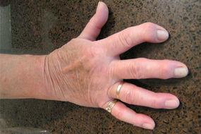 Am finger knubbel Dupuytren